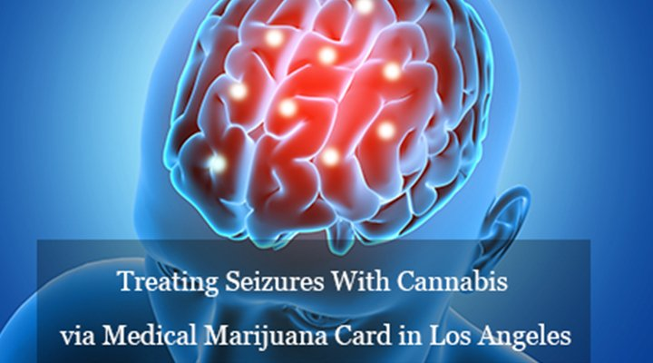 Treating Seizures With Cannabis via Medical Marijuana Card Los Angeles
